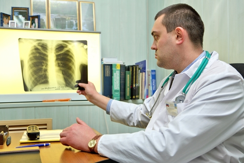lung cancer case study of a patient